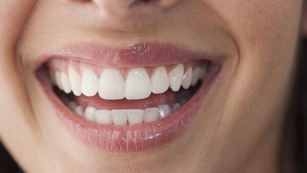 gülümseyen beyaz diş