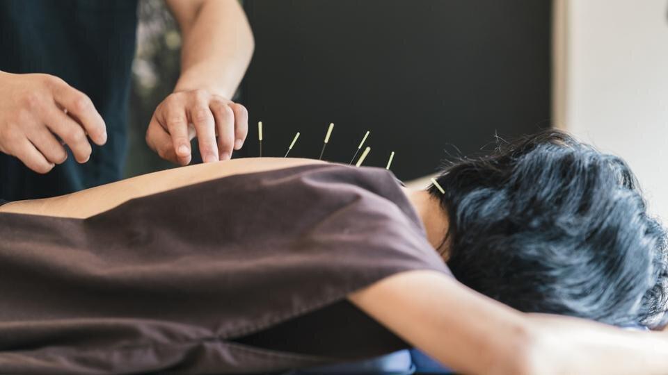 akupunktur-uygulamasi