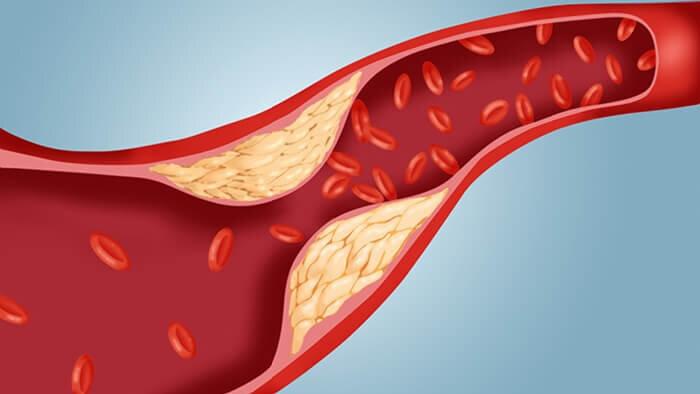 kolesterol-ve-zencefil