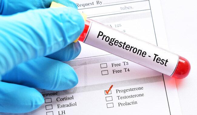 Progesteron nedir? Progesteron düşüklüğü için neler yapılabilir?